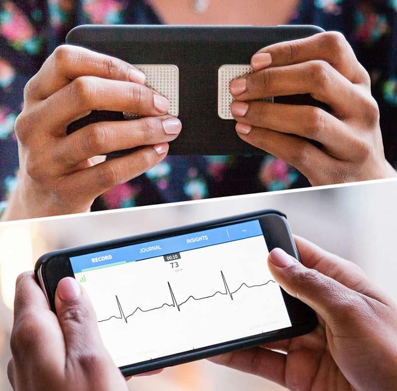 Kardia Mobile ECG By AliveCor